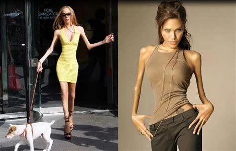 como se verian algunas famosas  fueran anorexicas