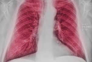 COPD Chest X-Ray