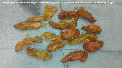 undigested food in stool stomach and gastric surgery winston salem carolina