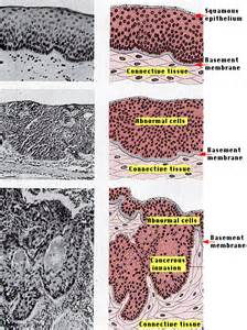 Healthy Lung vs Cancer Cells