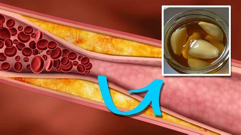 How To Lower Triglycerides Quickly And Naturally Youtube