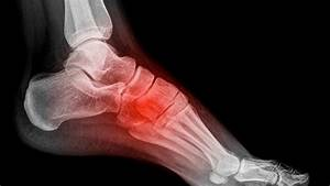 What Are The Top 3 Types Of Foot Pain