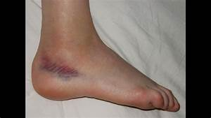 Sprained Foot Tendon Or Ligament