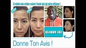 Start And Stop Avis : diff rine avis youtube ~ Medecine-chirurgie-esthetiques.com Avis de Voitures