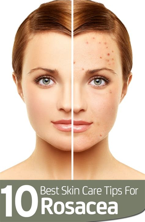 best for rosacea 514 best sensitive skin images on sensitive