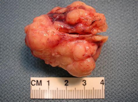 qiaos pathology pleomorphic adenoma mixed tumor