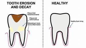 Reversing The Effects Of Tooth Decay