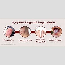 Fungal Infections  Causes, Symptoms, Diagnosis, Treatment