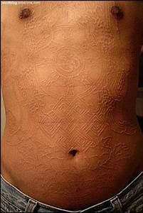 Scarification As Body Art