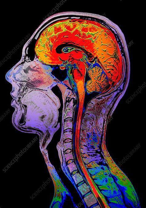 Normal brain, MRI scan - Stock Image C001/7911 - Science
