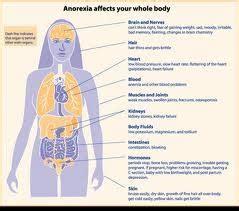 nursing care plan anorexia nervosa bulimia nervosa