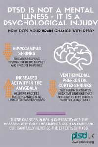 Ptsd, Stress disorders and Physical change on Pinterest  Post Traumatic Stress Disorder Antidepressant Medications