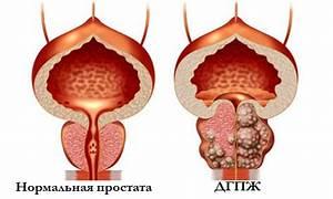 Купить препарат от простатита в украине