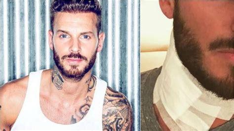 Matt Pokora Retire Un Tatouage Et Met Ses Fans En Garde