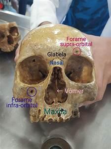 Forame Supra Orbital    Glabela    Nasal    V U00f4mer    Forame Infra