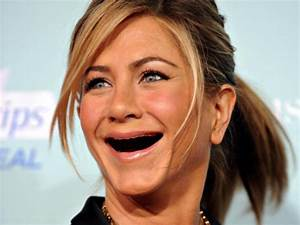 Celebrities With No Teeth 011 - FunCage