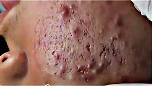 Acne Blackheads  U0026 Whiteheads Removal On Face  12