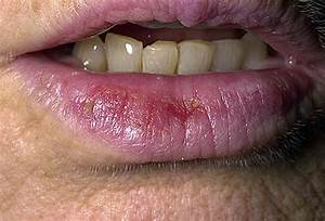 early stages lip cancer photos