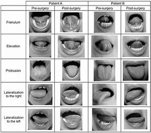 Lingual Frenulum And Tongue Movements In Two Subjects
