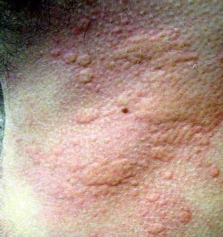 allergie au soleil les allergies de peau  boutons au