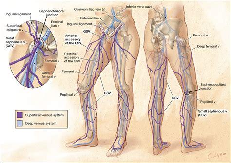 management  varicose veins  venous insufficiency