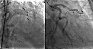 A  Coronary Angiogram Showing A Stuck Guide Wire In The