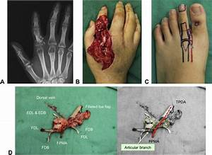 Chimeric Free Vascularized Metatarsophalangeal Joint With Toe Fillet Flap  A Technique For