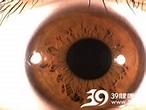 角膜灼伤刮伤_角膜灼伤刮伤的起因,诊断,检查,鉴别,治疗_症状查询_39疾病百科