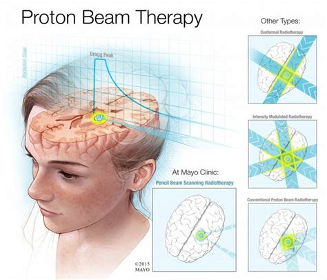 Proton Beam Radiation Therapy by Best 25 Radiation Therapy Ideas On Side