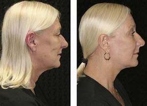 Endoscopic Brow Lift Fort Lauderdale