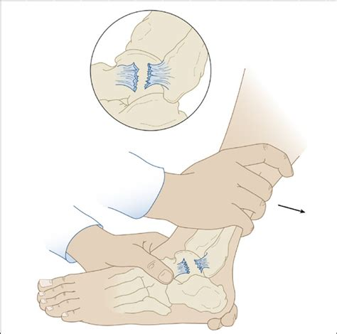 anterior drawer test ankle ankle sprain twisted ankle anesthesia key