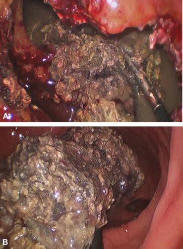 laparoscopic transgastric necrosectomy   management