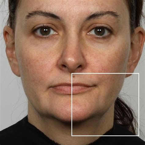 NuFACE Real Results: Microcurrent Facial Before