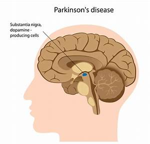 Parkinson disease - Genetics Home Reference