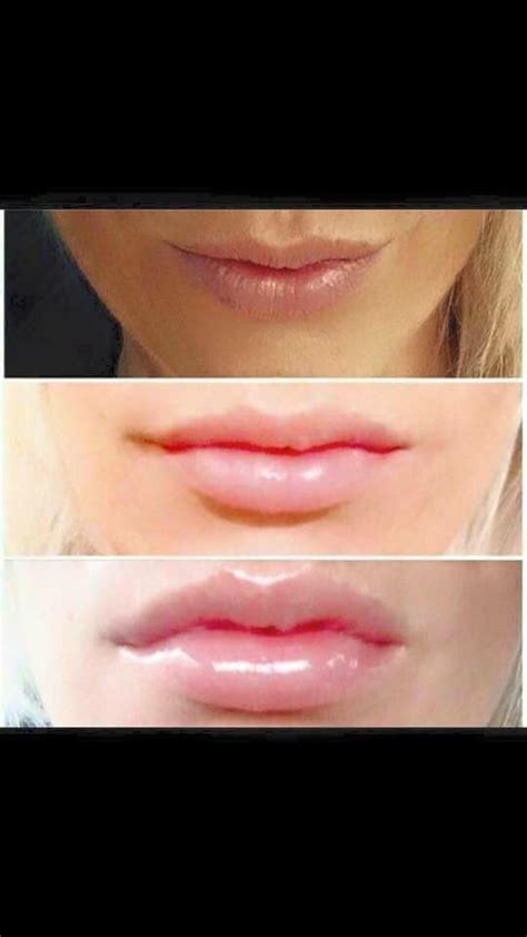 kiss thin undefined lips goodbye  contouring lip