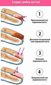 Ирунин крем инструкция по применению при грибке ногтей