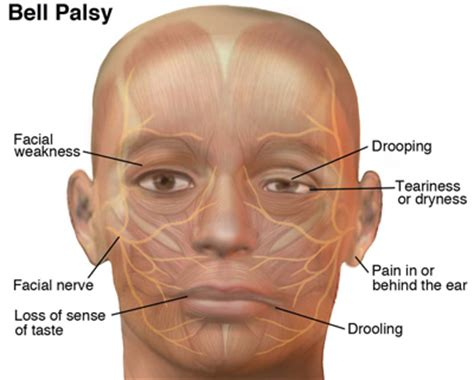 Bell's Palsy  Moveforwardptm. Pathology Signs. Hercules Character Signs Of Stroke. Wristband Signs Of Stroke. Flagger Signs Of Stroke. Chemical Pneumonitis Signs. Autism Information Signs. Voltage Signs Of Stroke. Firefighter Signs Of Stroke