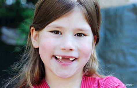 at what age does a child need a frenectomy answers 625 | frenectomy age of child