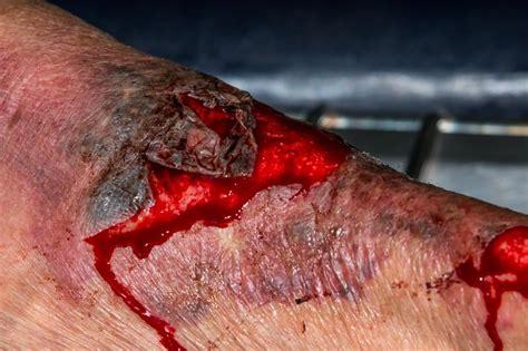 provider prepareds weekly pearl  wound wisdom  torn