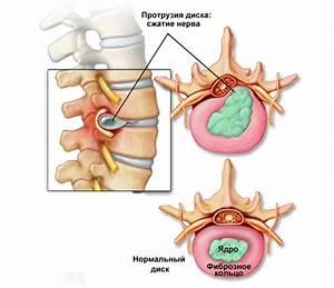 Остеохондроз спондилоартроз грыжа шморля лечение народными средствами