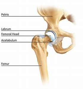 New Study Compares Hip Replacements