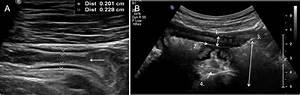 Gastrointestinal Ultrasound In Inflammatory Bowel Disease