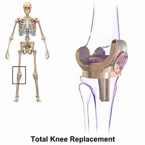 Diagram Of Knee Replacement