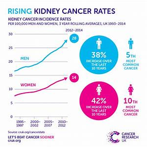 Kidney cancer rates are increasing, so what's fuelling the ...
