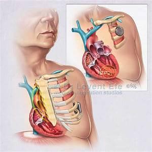 Icd Defibrillator Related Keywords - Icd Defibrillator ...