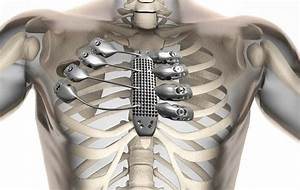 3d Printing Gives Cancer Patient New Ribs And Sternum In