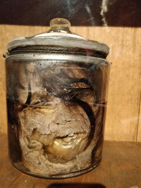 A beheaded woman's head preserved in a museum in Venice ...