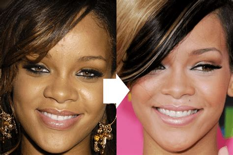 Rihanna Forehead Reduce Size Surgery Before And After