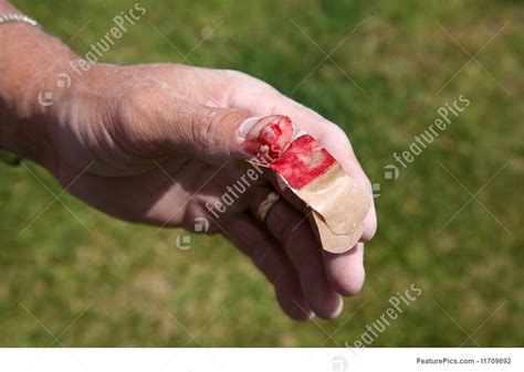 cut thumb stock picture   featurepics