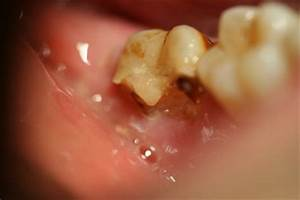 Flap U0026 39 S Dentistry Blog  The Daily Extraction  January 7  2013